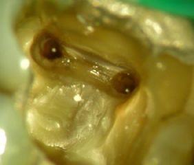 Wurzelbehandlung Mikroskopaufnahme. So sieht ein Zahnaus dessen Kanäle fertig zur Füllung sind. Im Kanal steht noch Desinfektionsmittel.