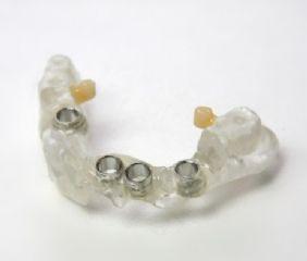 Dies ist eine Bohrschablone. Damit können Implantate wie geplant an der exakt richtigen Stelle und Tiefe gesetzt werden.