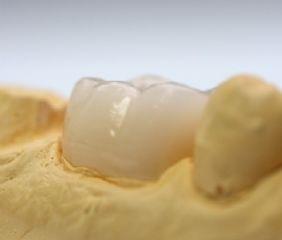 Vollkeramikkronen sind durch die handwerkliche Leistung eines Zahntechnikers nicht von echten Zähnen zu unterscheiden.