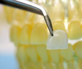 Veneers, auch Verblendschalen genannt, sind sehr dünn und werden auf Zähne geklebt. Gerade und schöne Zähne.