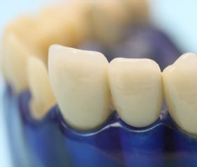 Die Standardkronen sind bei uns schon fast Luxuskronen. Mit Keramikschulter, damit bei einem Zahnfleischrückgang das Metall nicht sichtbar wird.