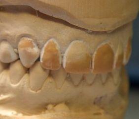 Ästhetik - Wax up Modell. Der Zahntechniker zeigt mit Wachs, wie die neuen Zähne aussehen werden.