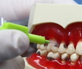 Mundhygiene. Interdentalbürsten sind gemäß einer großen Studie wichtiger als Zahnseide.